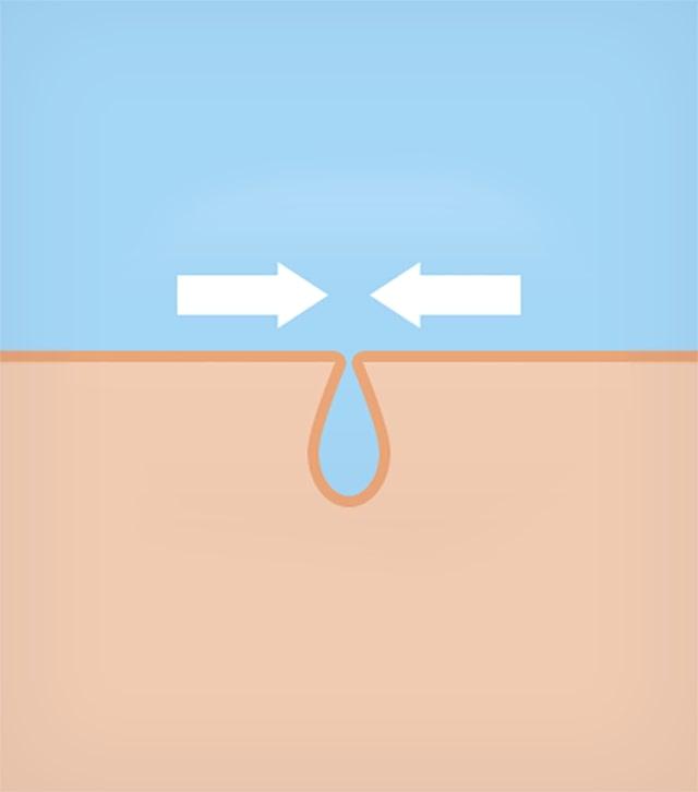 Tăng cường hàng rào độ ẩm của da